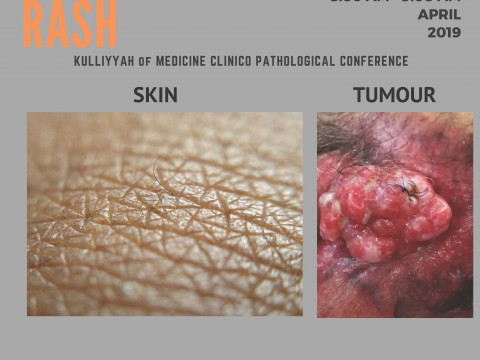 """""""A PRIVATE RASH"""" - KOM CPC BY DEPT. OF SURGERY"""
